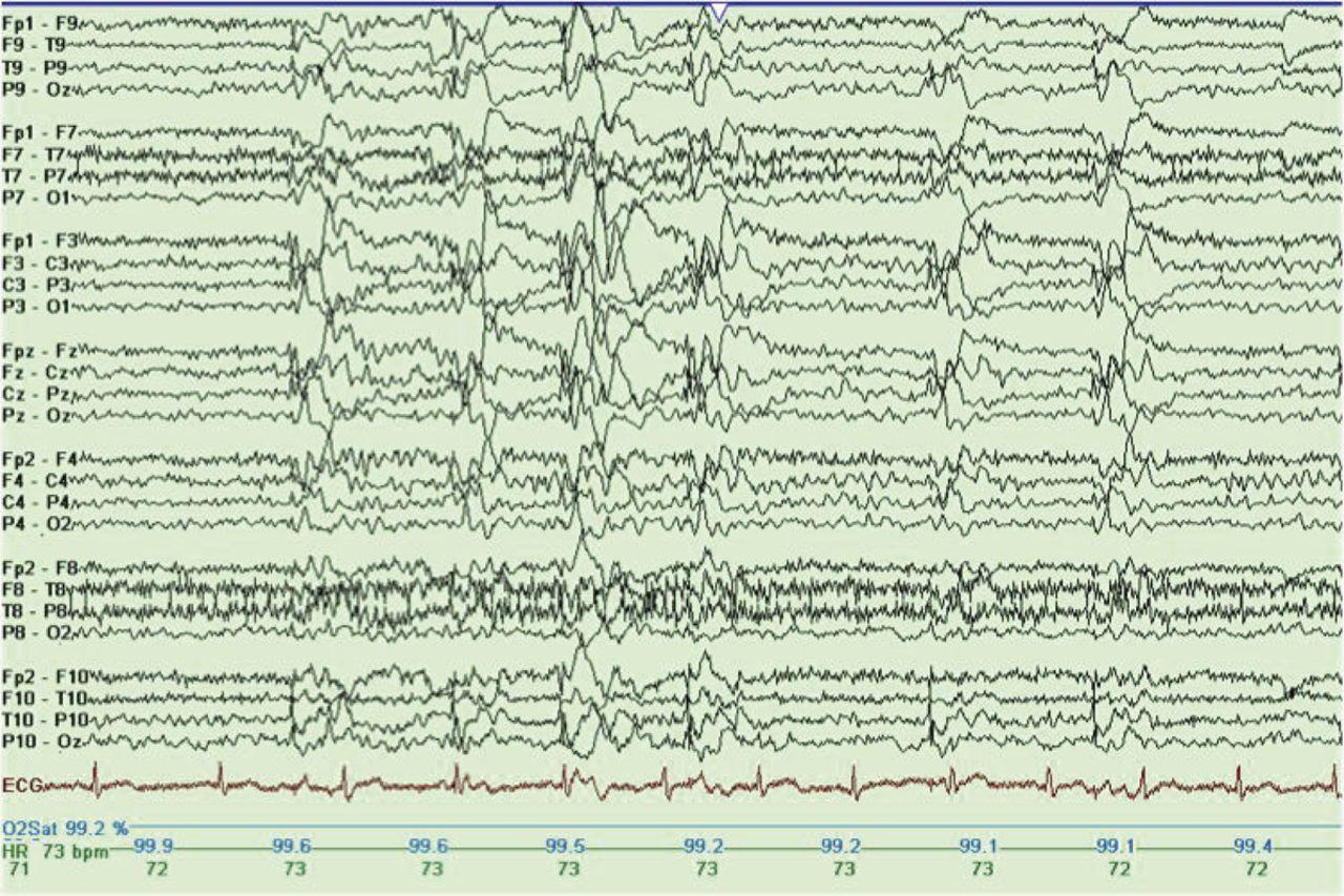 Reading Epilepsy, ovvero l'Epilessia da Lettura